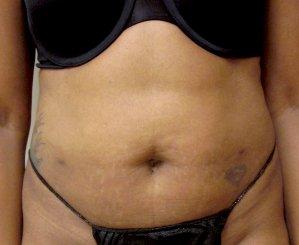 Manhattan liposuction after 10